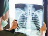 Болестта от електронни цигари получи официално название